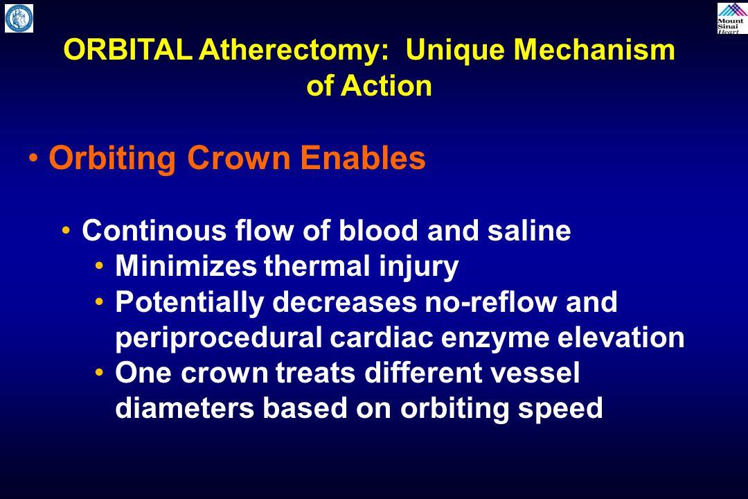 ORBITAL Atherectomy: Unique Mechanism