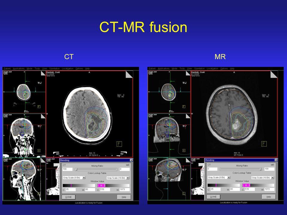 CT-MR fusion CT MR