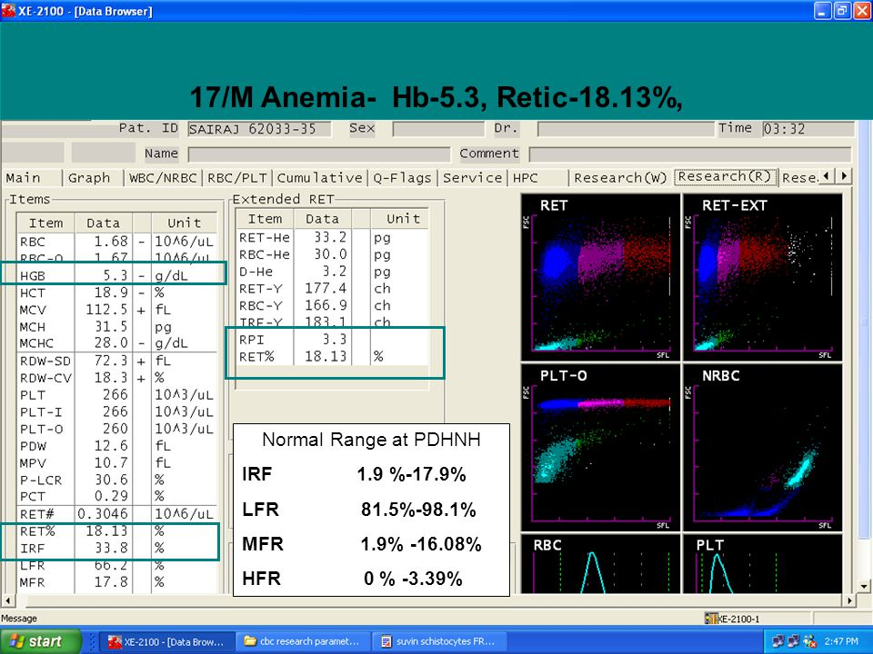 17/M Anemia- Hb-5.3, Retic-18.13%, Normal Range at PDHNH