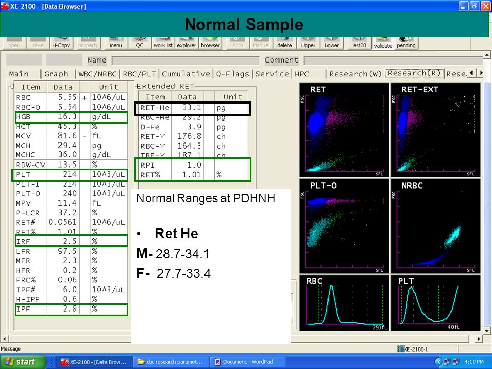 Normal Sample Normal Ranges at PDHNH Ret He M- 28.7-34.1 F- 27.7-33.4