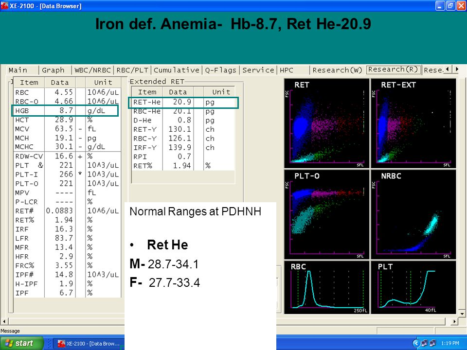 Iron def. Anemia- Hb-8.7, Ret He-20.9