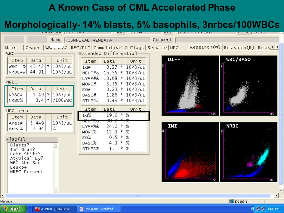 A Known Case of CML Accelerated Phase