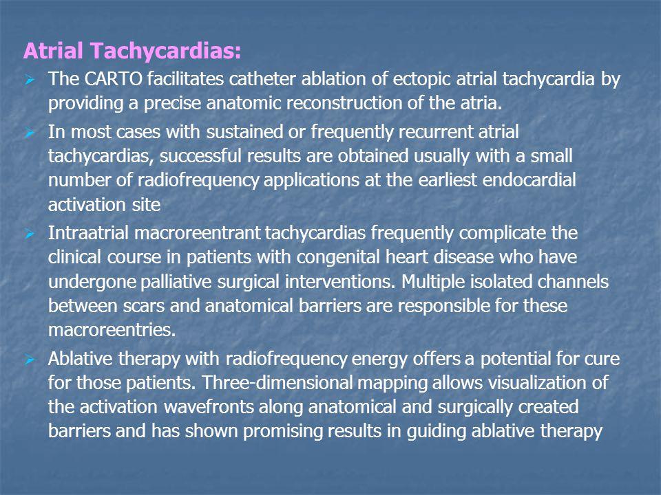 Atrial Tachycardias: