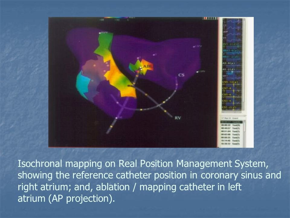Isochronal mapping on Real Position Management System, showing the reference catheter position in coronary sinus and right atrium; and, ablation / mapping catheter in left atrium (AP projection).