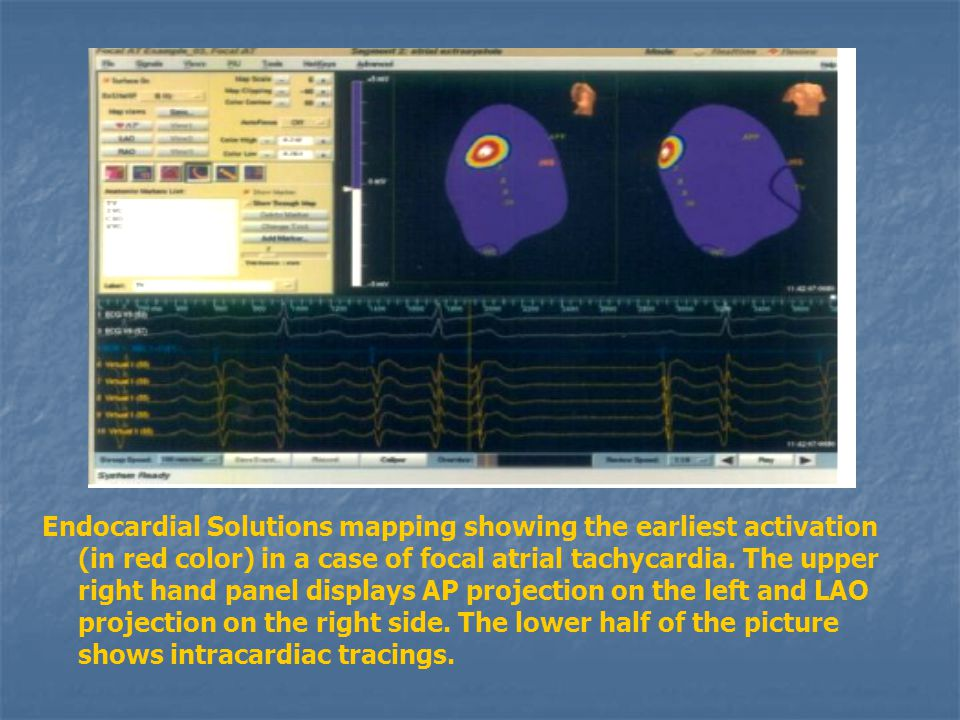 Endocardial Solutions mapping showing the earliest activation (in red color) in a case of focal atrial tachycardia.