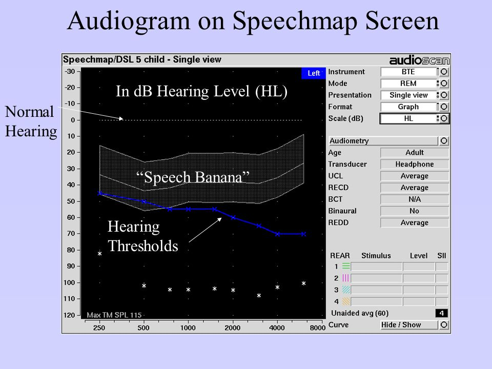 Audiogram on Speechmap Screen