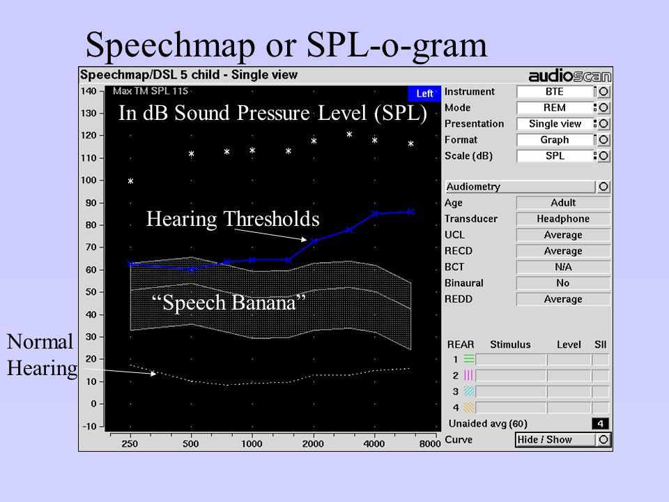 Speechmap or SPL-o-gram