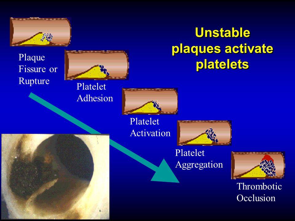 Unstable plaques activate platelets