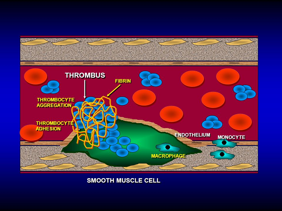 THROMBUS SMOOTH MUSCLE CELL FIBRIN THROMBOCYTE AGGREGATION THROMBOCYTE
