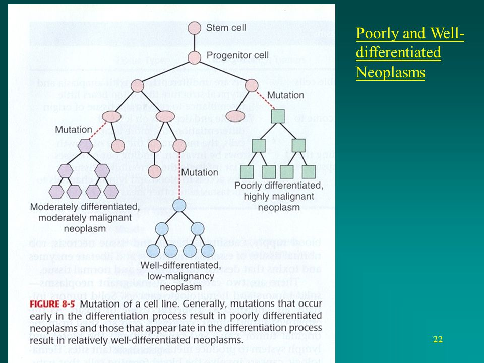 Poorly and Well-differentiated Neoplasms