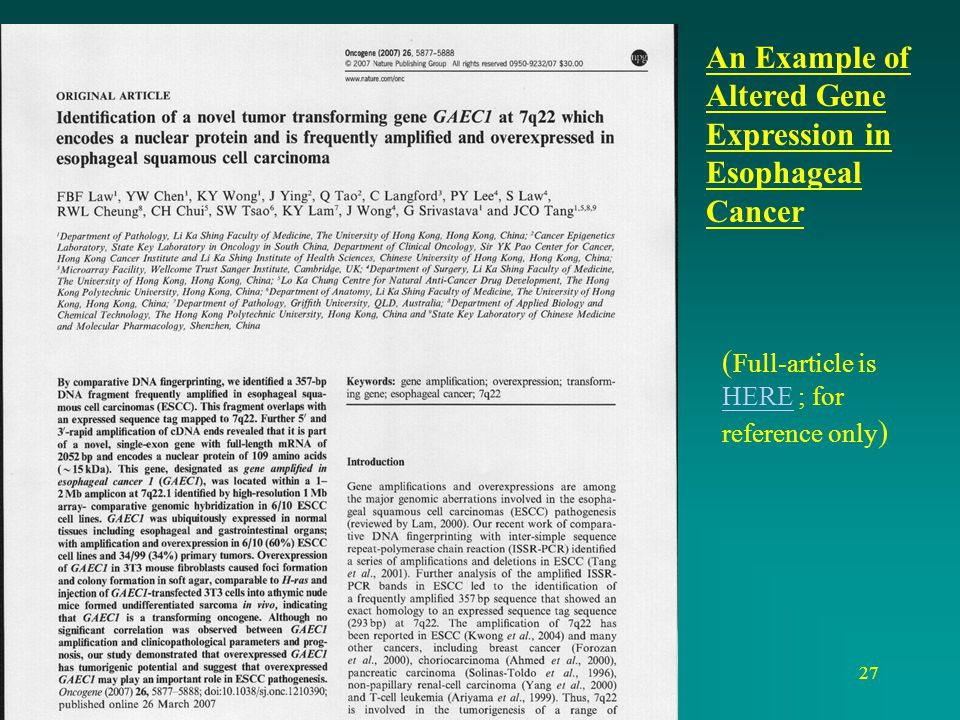 An Example of Altered Gene Expression in Esophageal Cancer