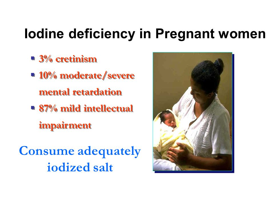 Iodine deficiency in Pregnant women