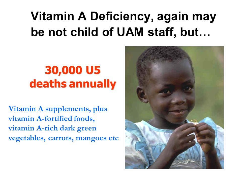 Vitamin A Deficiency, again may be not child of UAM staff, but…