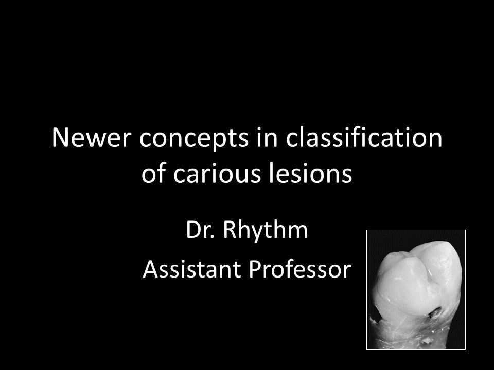 Newer concepts in classification of carious lesions