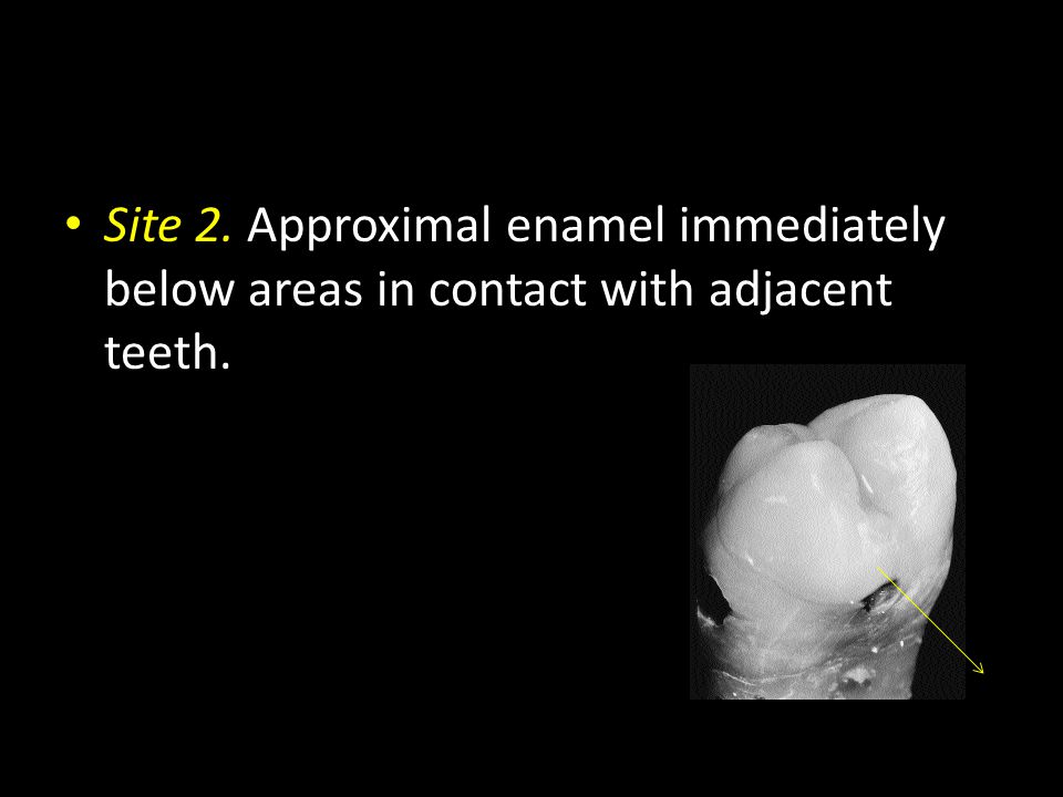 Site 2. Approximal enamel immediately below areas in contact with adjacent teeth.