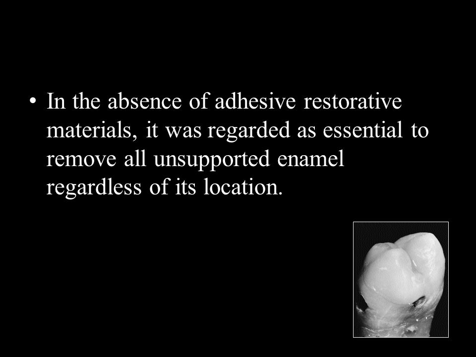 In the absence of adhesive restorative materials, it was regarded as essential to remove all unsupported enamel regardless of its location.
