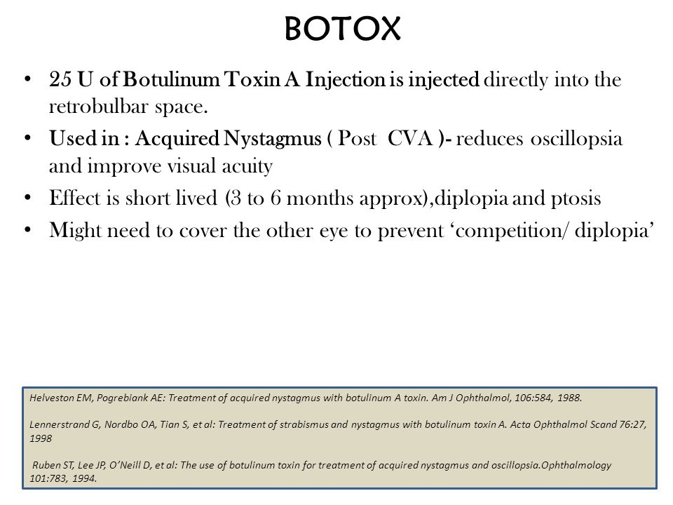BOTOX 25 U of Botulinum Toxin A Injection is injected directly into the retrobulbar space.