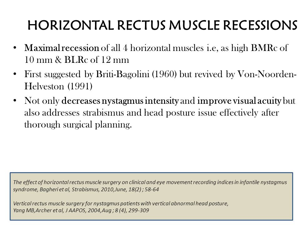 HORIZONTAL RECTUS MUSCLE RECESSIONS