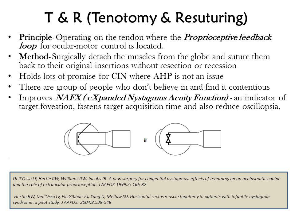 T & R (Tenotomy & Resuturing)