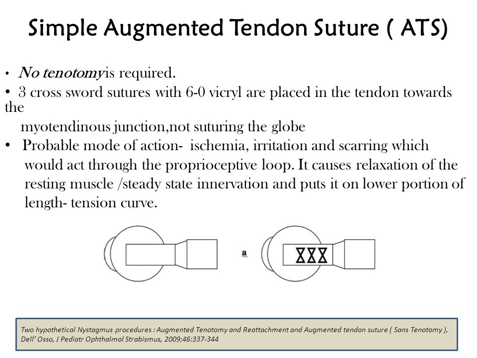 Simple Augmented Tendon Suture ( ATS)