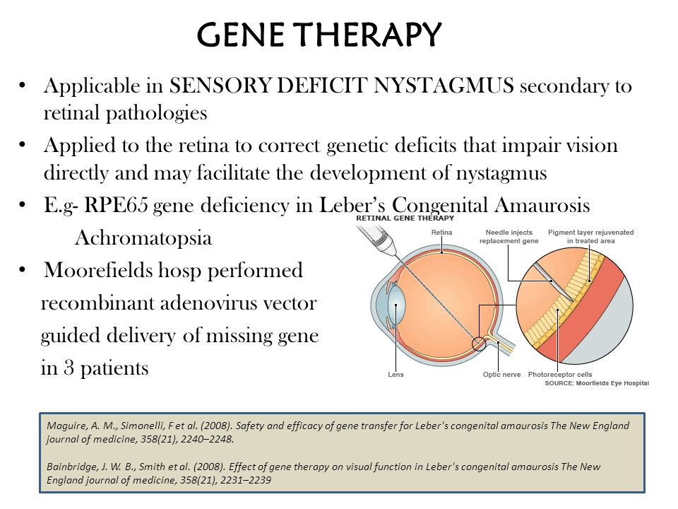 GENE THERAPY Applicable in SENSORY DEFICIT NYSTAGMUS secondary to retinal pathologies.