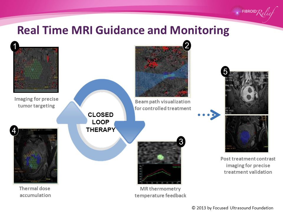 Real Time MRI Guidance and Monitoring