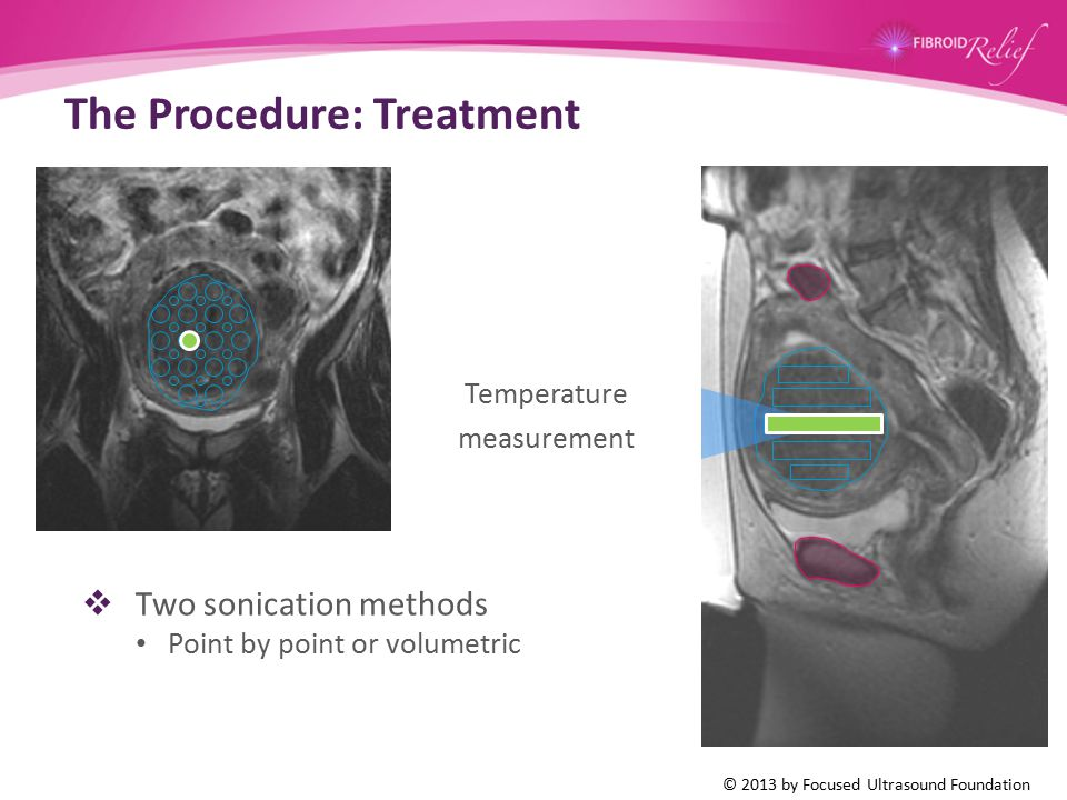 The Procedure: Treatment