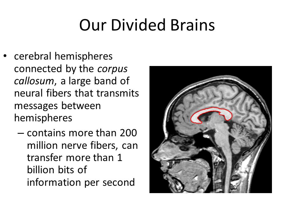 Our Divided Brains cerebral hemispheres connected by the corpus callosum, a large band of neural fibers that transmits messages between hemispheres.