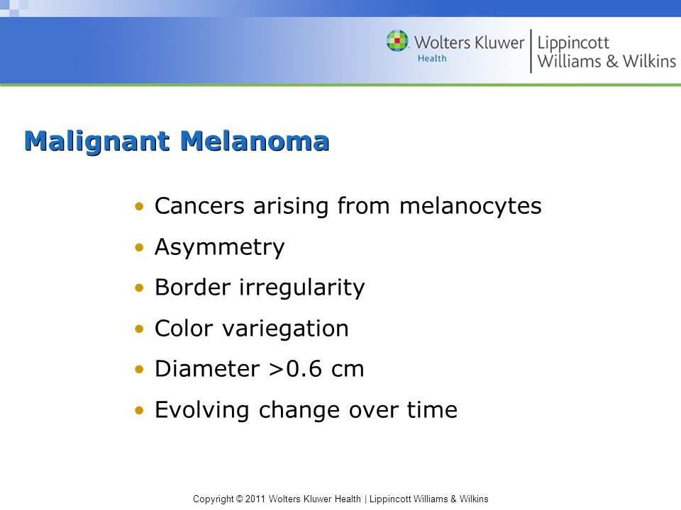 Malignant Melanoma Cancers arising from melanocytes Asymmetry