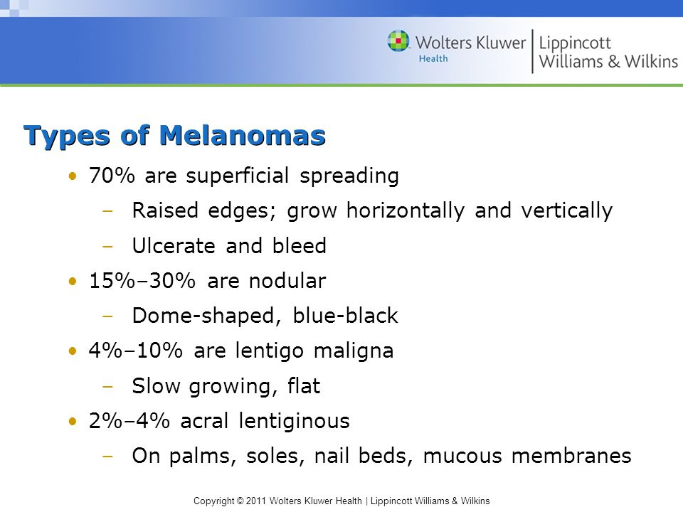Types of Melanomas 70% are superficial spreading