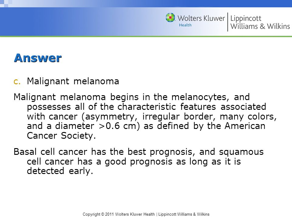 Answer Malignant melanoma