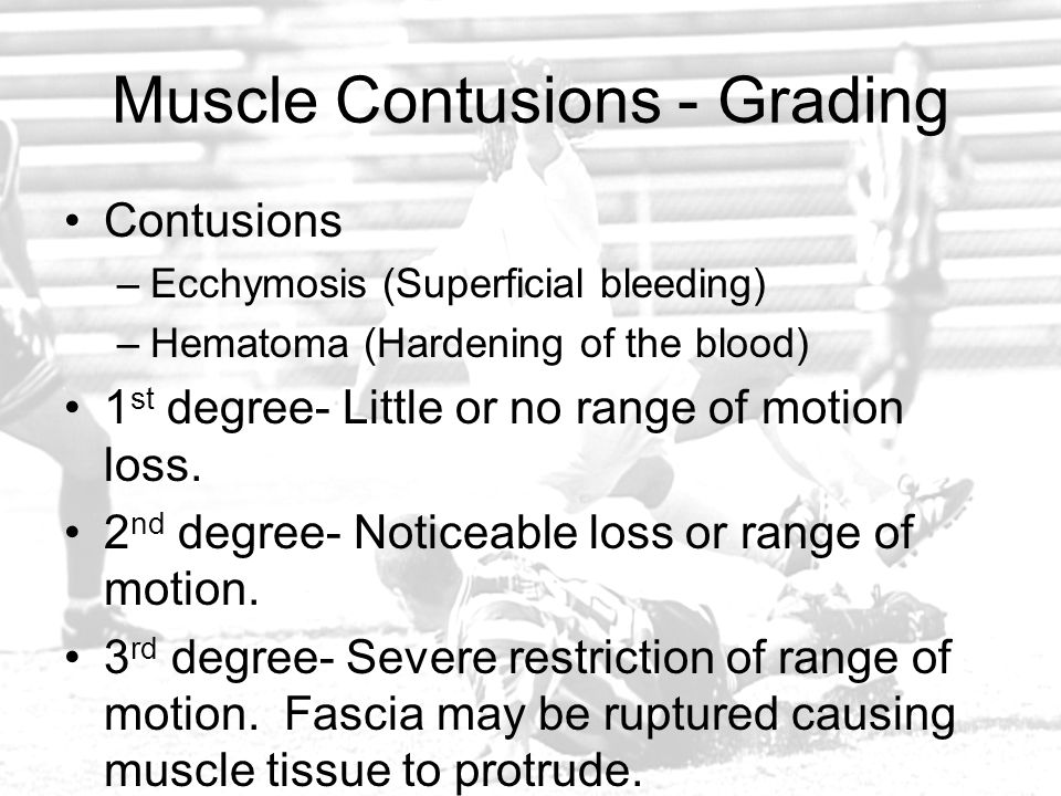 Muscle Contusions - Grading