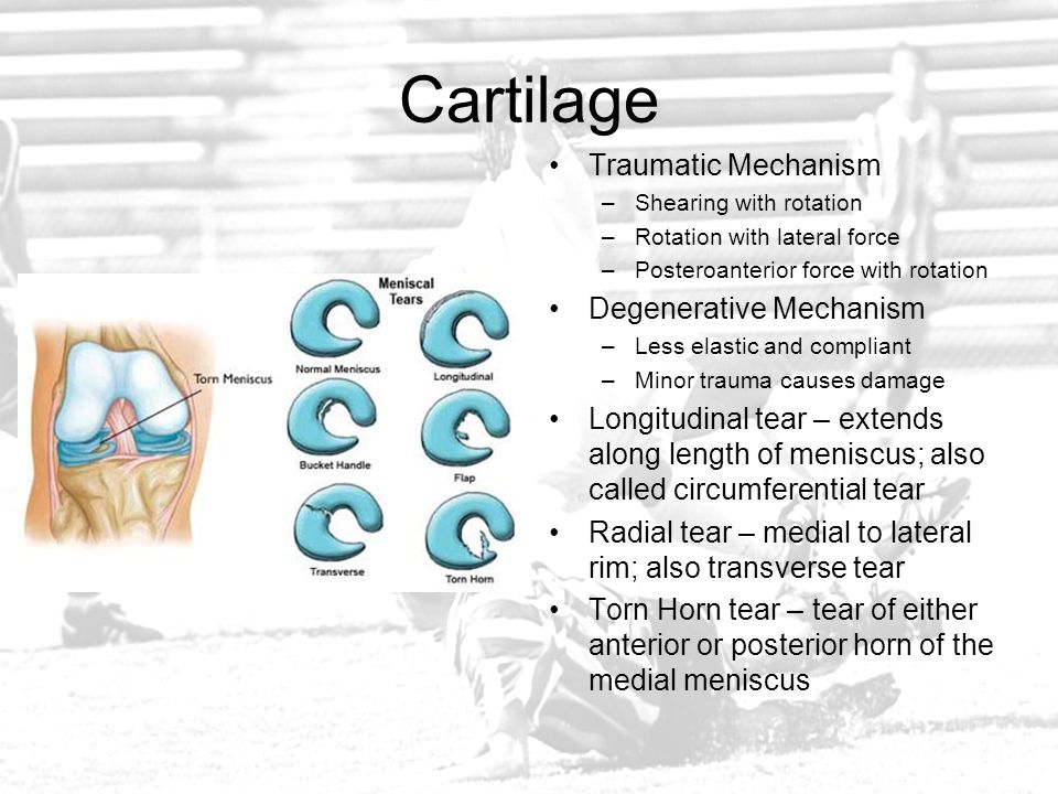 Cartilage Traumatic Mechanism Degenerative Mechanism