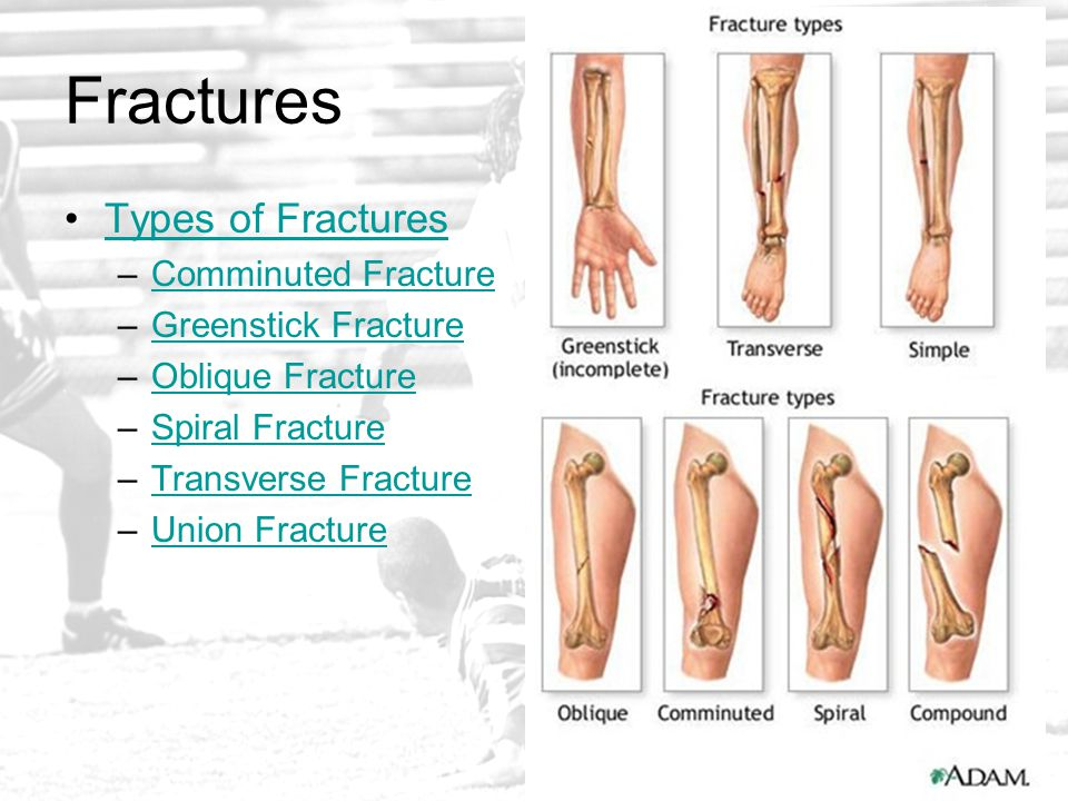Fractures Types of Fractures Comminuted Fracture Greenstick Fracture