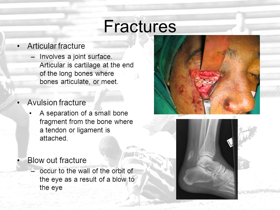Fractures Articular fracture Avulsion fracture Blow out fracture