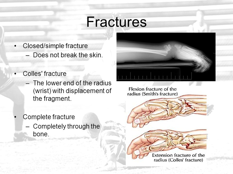 Fractures Closed/simple fracture Does not break the skin.