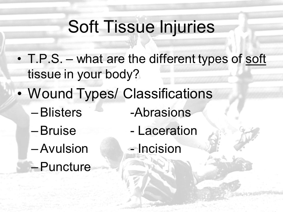 Soft Tissue Injuries Wound Types/ Classifications