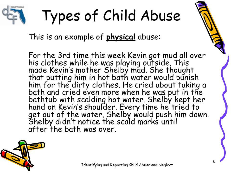 Types of Child Abuse This is an example of physical abuse: