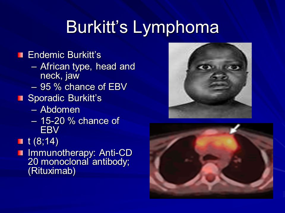 Burkitt's Lymphoma Endemic Burkitt's African type, head and neck, jaw