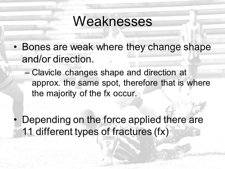 Weaknesses Bones are weak where they change shape and/or direction.
