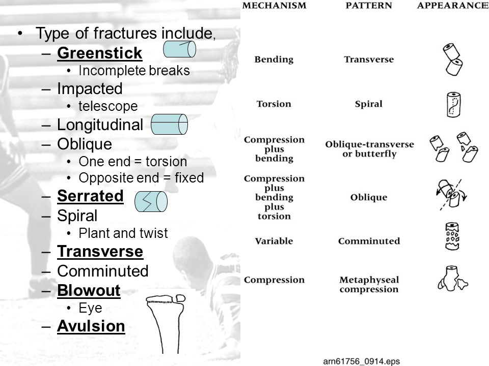 Type of fractures include, Greenstick Impacted Longitudinal Oblique
