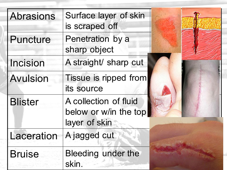 Abrasions Puncture Incision Avulsion Blister Laceration Bruise