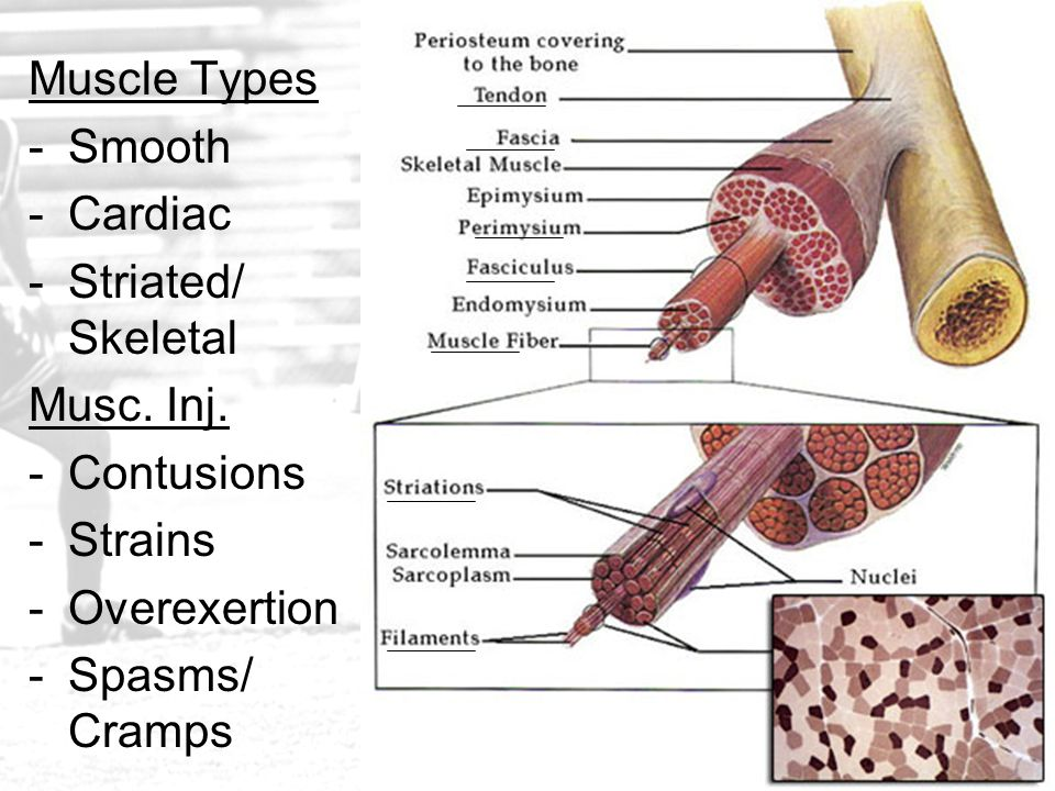 Muscle Types Smooth. Cardiac. Striated/ Skeletal. Musc. Inj. Contusions. Strains. Overexertion.