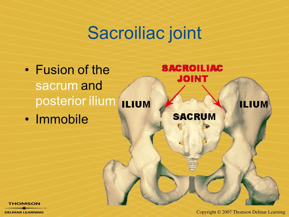 Sacroiliac joint Fusion of the sacrum and posterior ilium Immobile