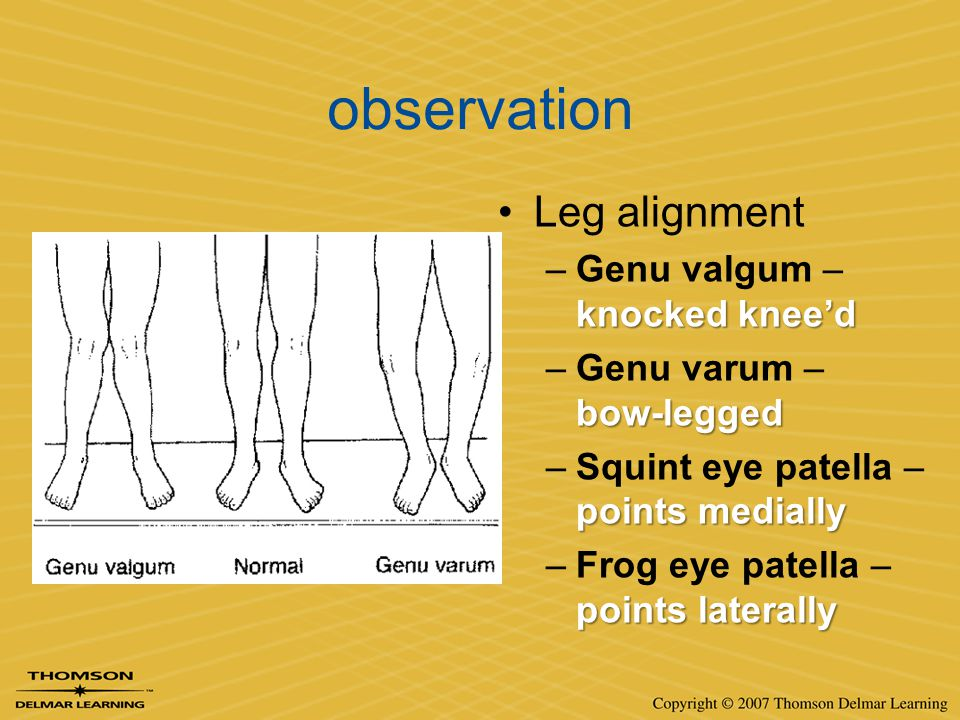 observation Leg alignment Genu valgum – knocked knee'd