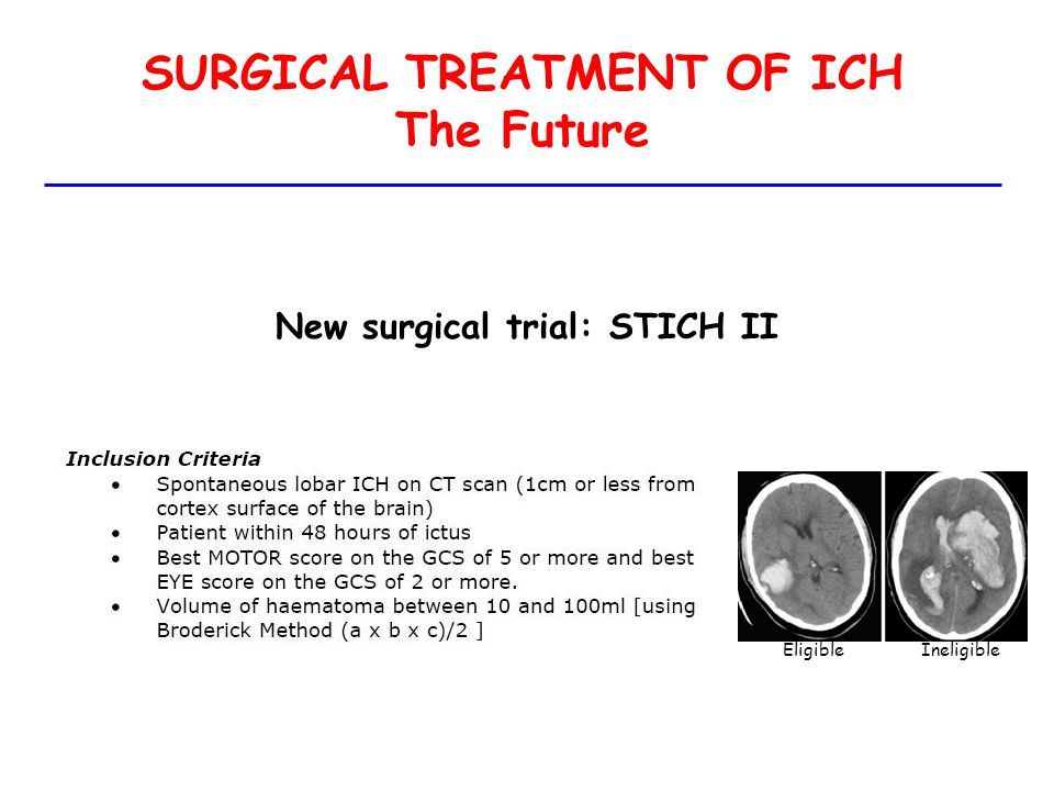 SURGICAL TREATMENT OF ICH The Future