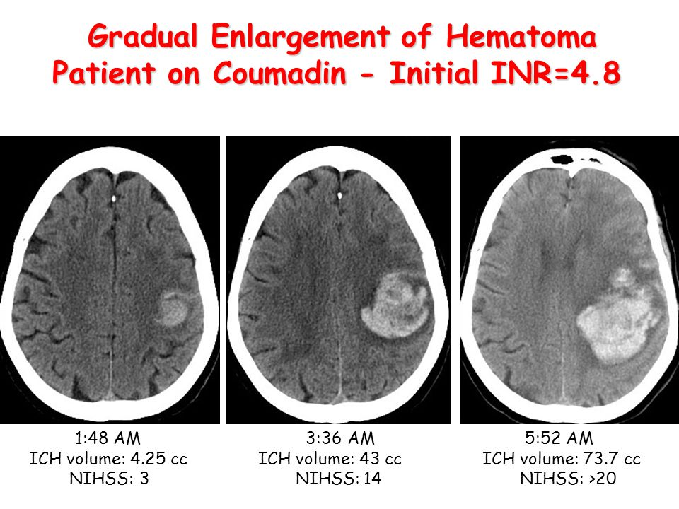Gradual Enlargement of Hematoma Patient on Coumadin - Initial INR=4.8