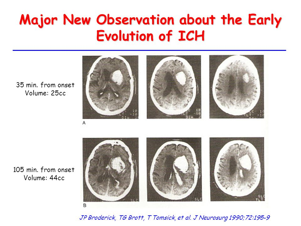 Major New Observation about the Early Evolution of ICH