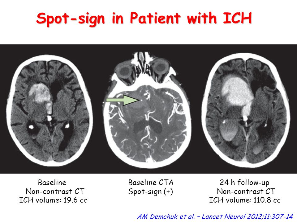 Spot-sign in Patient with ICH