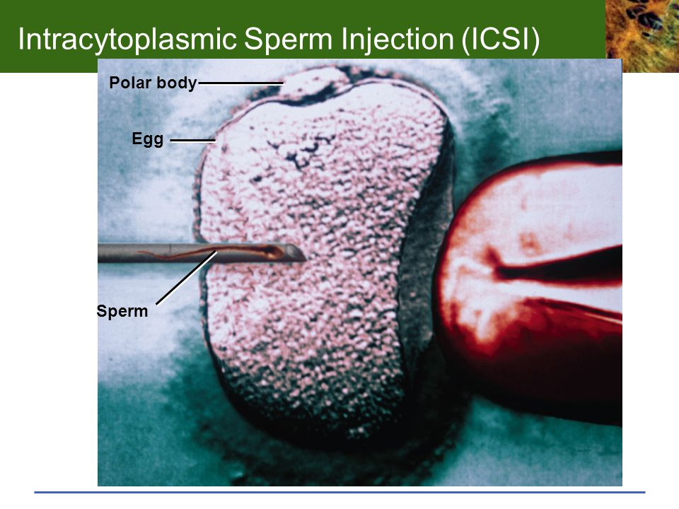 icsi intracytoplasmic sperm injection